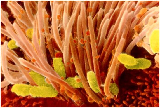 как выглядит бактерия