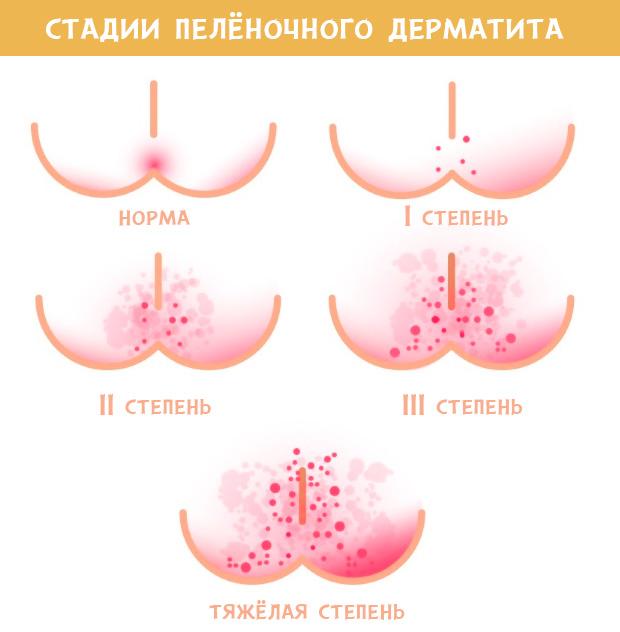 Как лечить пеленочный дерматит у новорожденных фото thumbnail