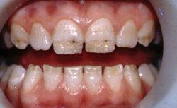 Почему у ребенка 7 лет чернеют зубы