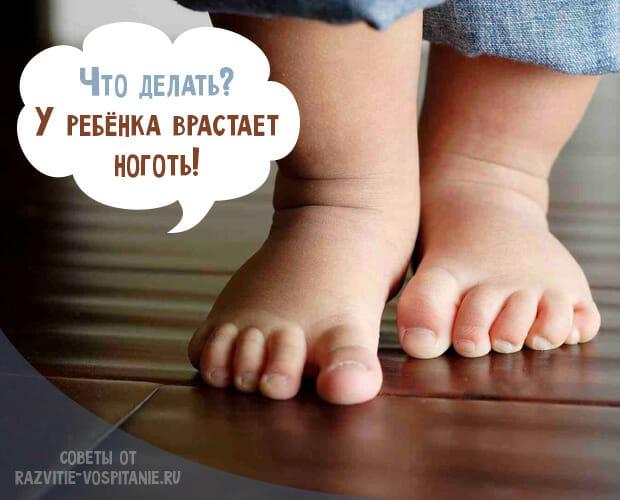 У ребенка врастают ногти в кожу