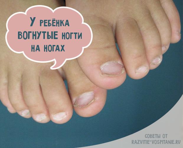 Трескаются ногти на ногах: причины, методы лечения