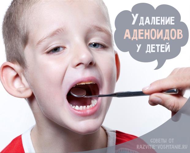 Осложнения после аденотомии у детей