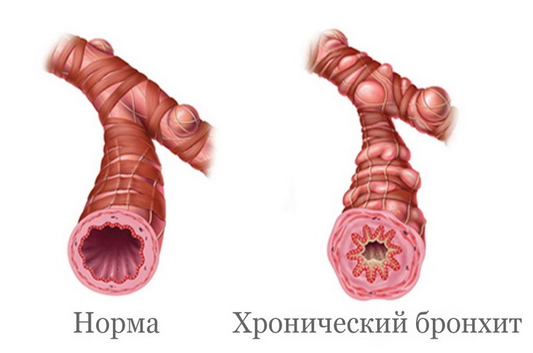 Бронхит у годовалого ребенка симптомы лечение комаровский thumbnail