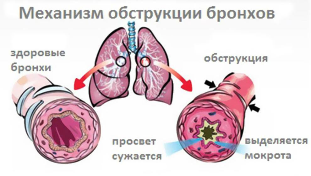 обструкция легких