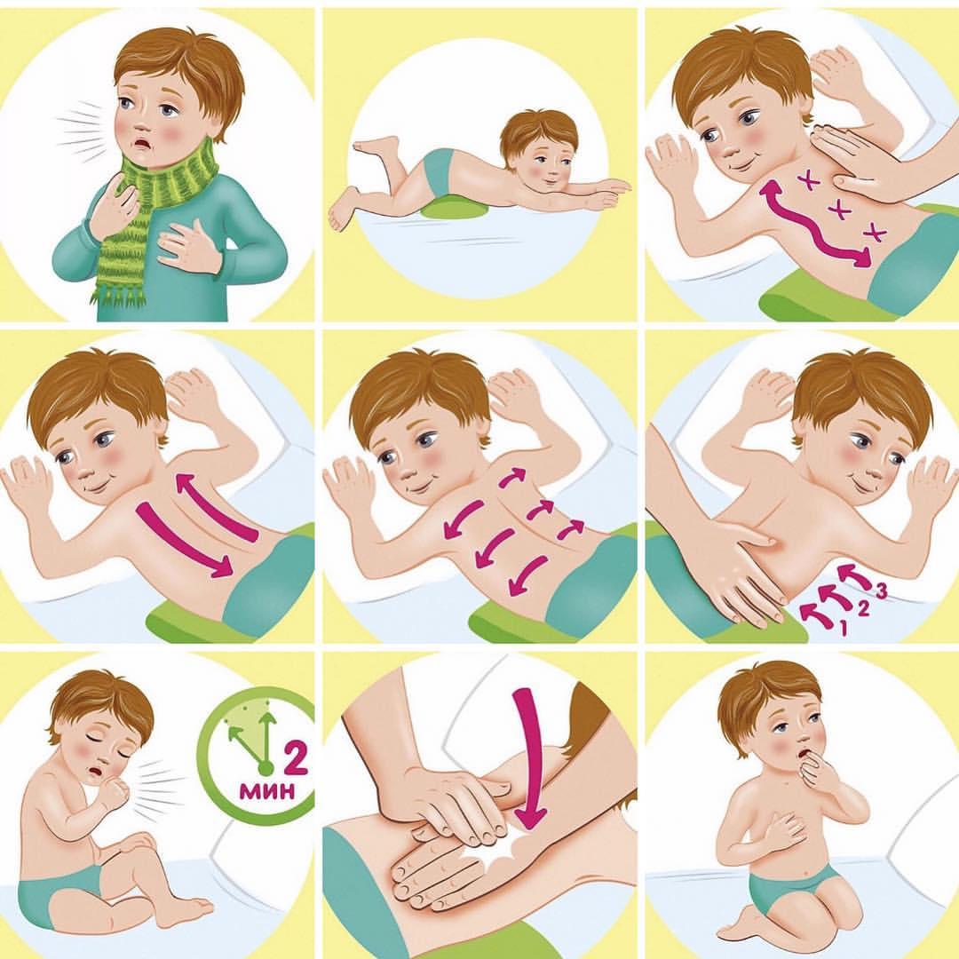 Лечение бронхита народными средствами у детей до 1 года thumbnail