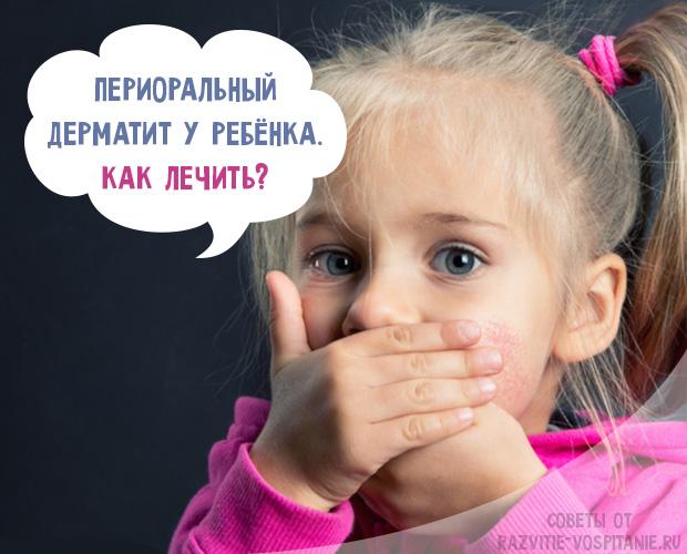 Что делать при появлении дерматита возле рта у ребенка